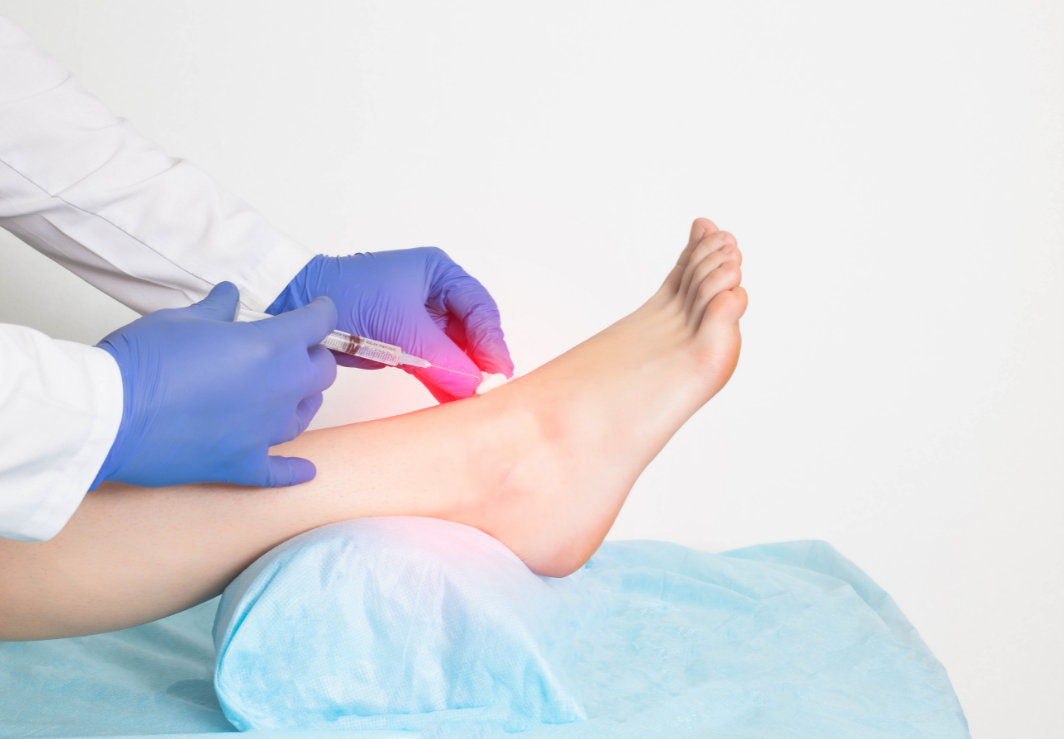 Acupuncture Injection Therapy
